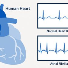 Atrial fibrillation is the most commonly diagnosed arrhythmia in the world. Despite that, many people do not understand the pre-diagnosis symptoms and tend to ignore them.